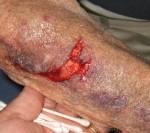 Skin tear category III